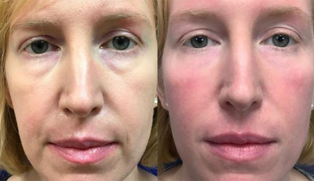 Dermal-fillers-Oneonta (1)