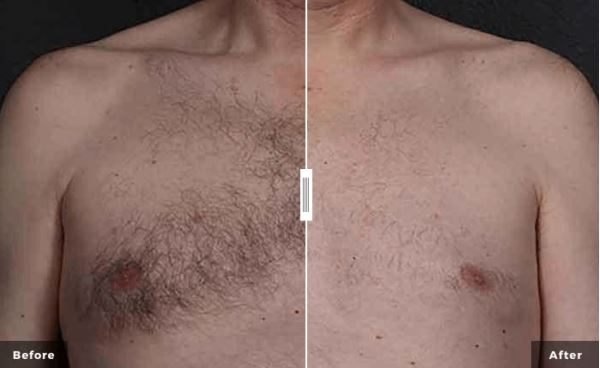 Laser-hair-Removal-oneota